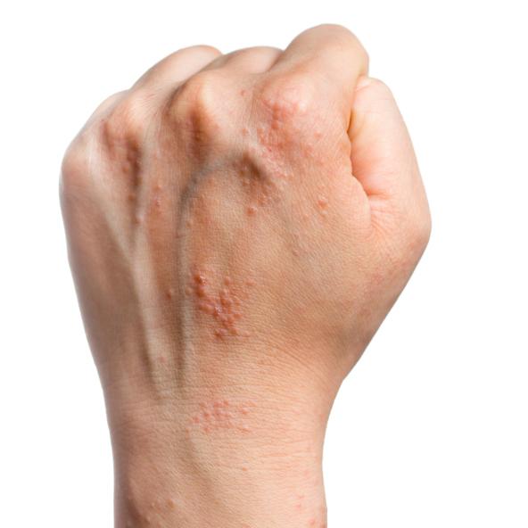 Nail Clinic: Eczema