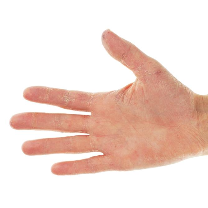 Nail Clinic: Peeling Skin In Exfoliative Keratolysis