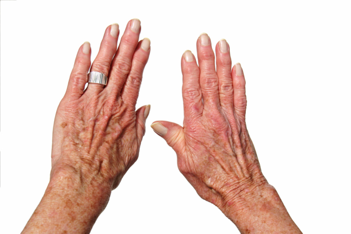 Nail Clinic: Help Clients With Arthritis