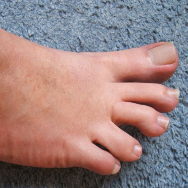 5 Common Toe Problems and Their Causes