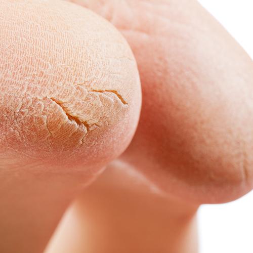 5 Ways To Reverse Cracked, Callused Heels