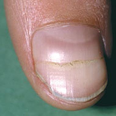 Nail Clinic: Beau