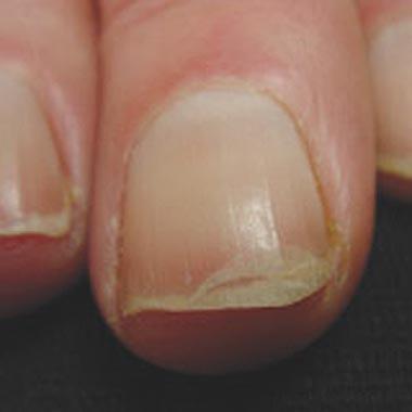 Nail Clinic: Cracking Up