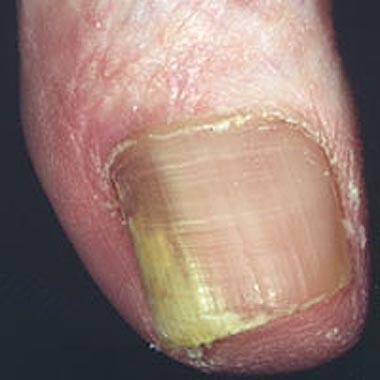 Nail Clinic: Onychomycosis