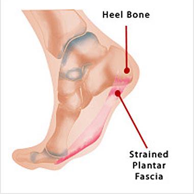 Nail Clinic: Plantar Fasciitis