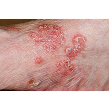 Nail Clinic: Psoriasis