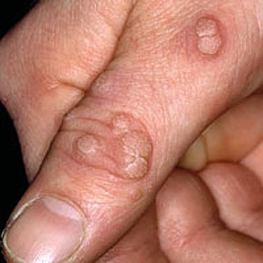 Nail Clinic: Warts