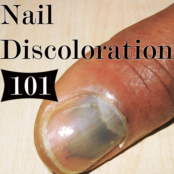What Discoloration of the Nail Means