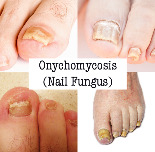 Onychomycosis: Types of Nail Fungus, Causes, and Symptoms