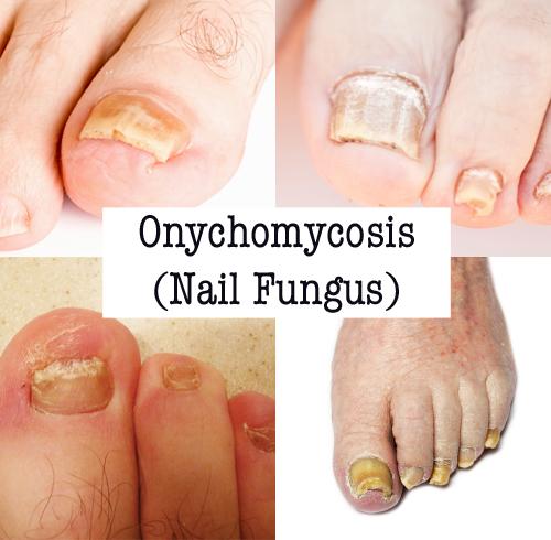 Nail Health Nail Salons Nail Diseases Nail Fungus Yeast