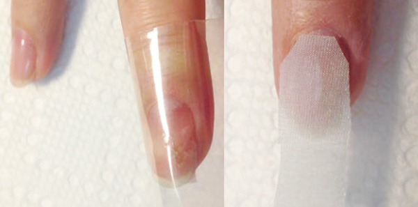Fix Peeling Cracking And Broken Nails