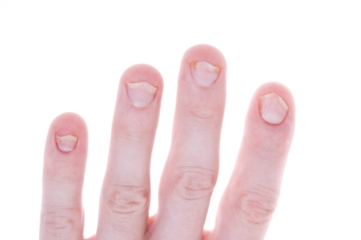 Nail Products Like Acrylics Acetone Formaldehyde Can Irritate Techs And Their Clients From Overexposure