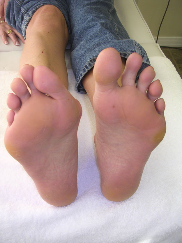 Bunions | Learn How to Identify and Address Four Major Foot Problems; check it out at http://www.nailpro.com/foot-problems