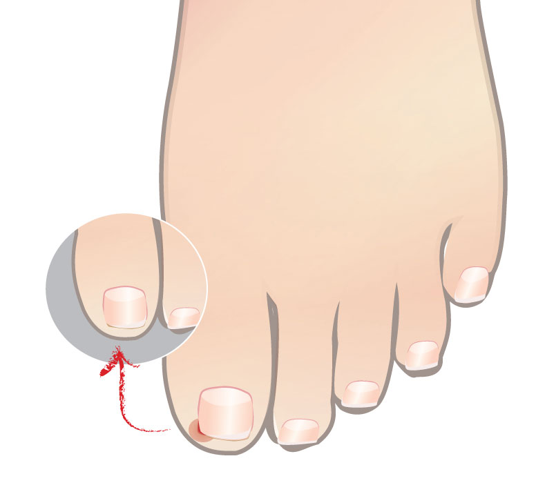Top 9 Do's and Don'ts for Handling Ingrown Toenails