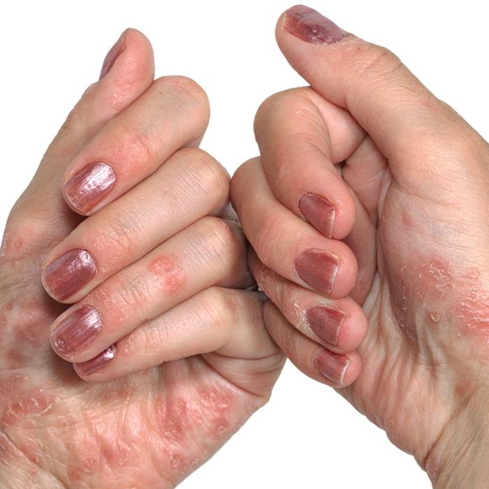 Nail Clinic: Understanding Psoriasis - Nailpro
